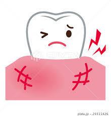 晴れる歯ぐきが.jpg